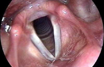 Гипертрофический тип болезни