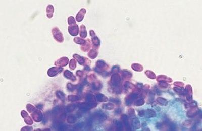 Вызывающий патологию грибок