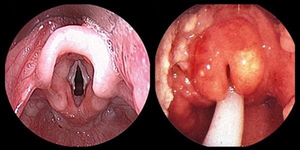 Гипертрофия горла