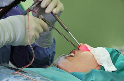 Хирургическая процедура