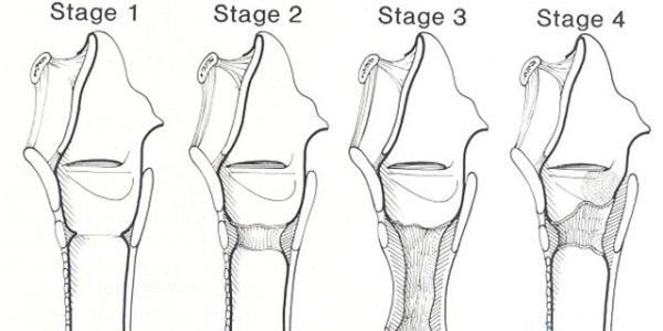 Какие есть стадии