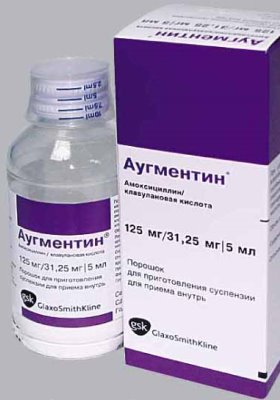 антибиотики аугментин при ангине у детей