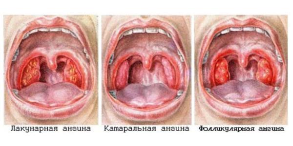 Пример заболевания