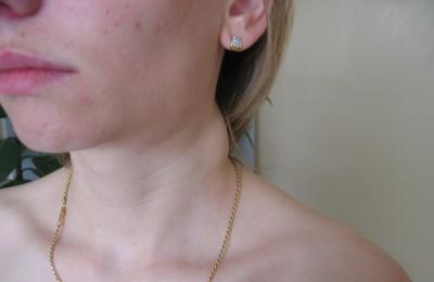 Увеличением лимфатических желез