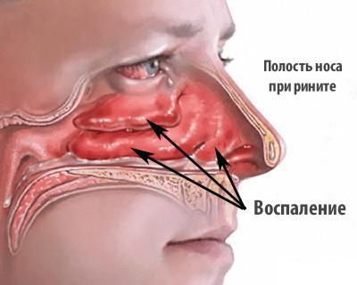 Отечность носовой полости