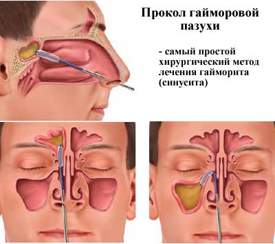 Прокол носовых пазух