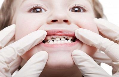 Кариозные зубы