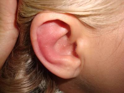 покраснение уха