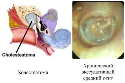 холеастома