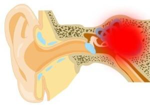 Кондуктивный отосклероз