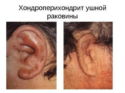 Хондроперихондрит