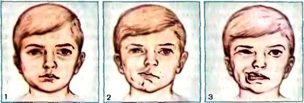 Как лечить воспаление лицевого нерва на лице