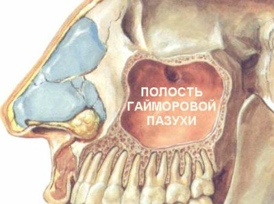 хроническое воспаление гайморовых пазух