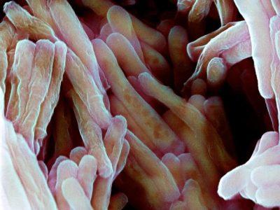 туберкулезная инфекция