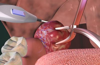 Хирургическое избавление от патологии