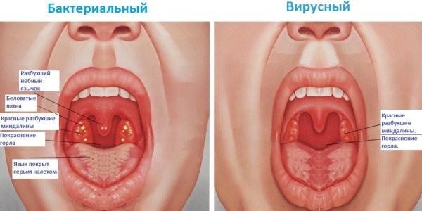 Хроническая болезнь горла