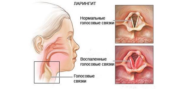 Поражение горла