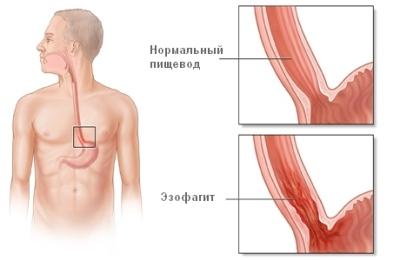Болезнь Эзофагит