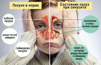 Что происходит при болезни
