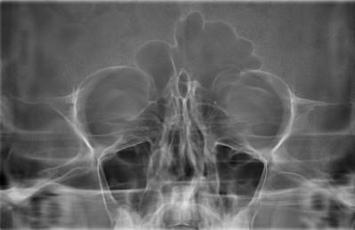Рентген придаточных носовых пазух