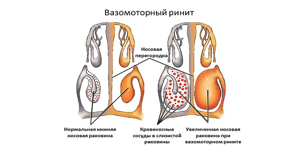 Вазомоторная форма