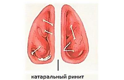 Катаральная форма