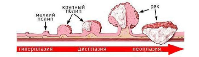 Перерождение полипов