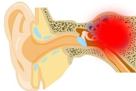 Поражены клетки внутреннего уха.