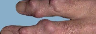 revmatoidnye-uzelki