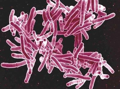 tuberculosis-2ce586815f5d8d3cd8eb89560dd5c3e26aa1834f-s6-c30